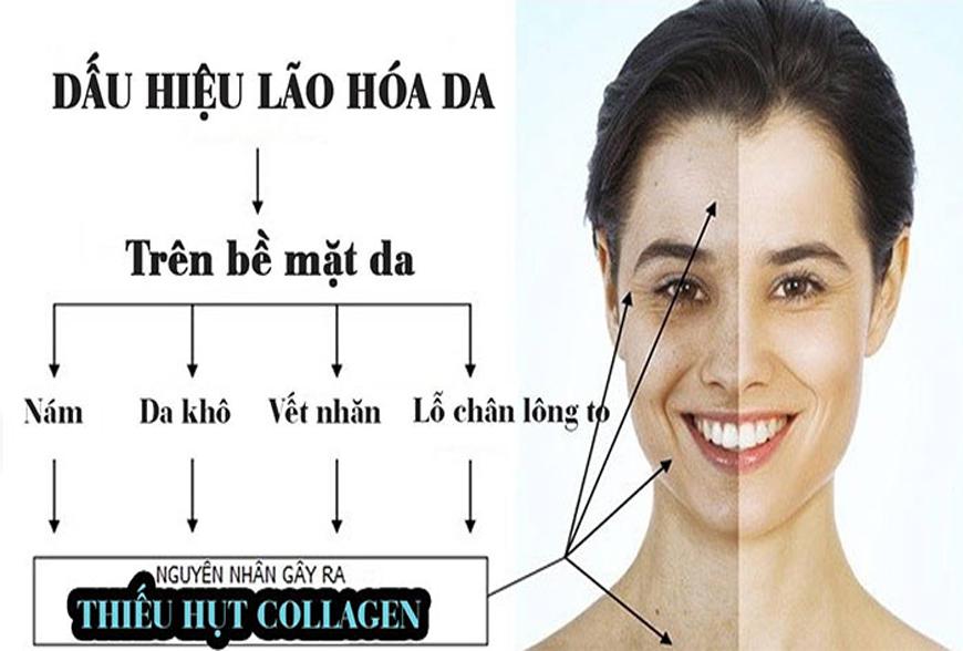 Cơ thể thiếu collagen có những dấu hiệu gì