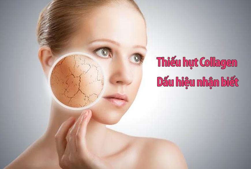 Nguyên nhân thiếu hụt collagen và cách khắc phục