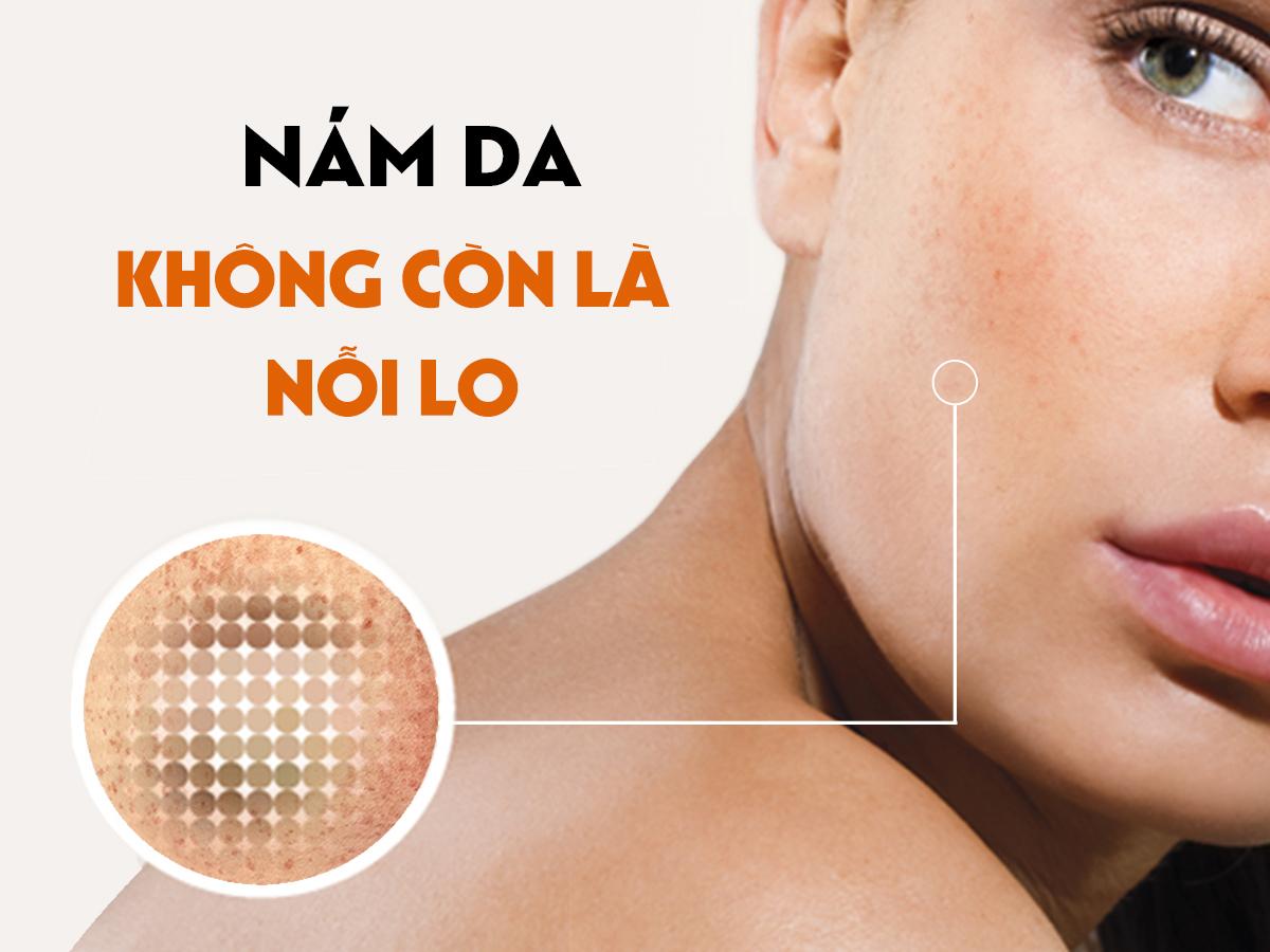 Chăm sóc da và câu chuyện về nám da