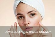 Uống collagen thường xuyên có bị nóng và nổi mụn không?